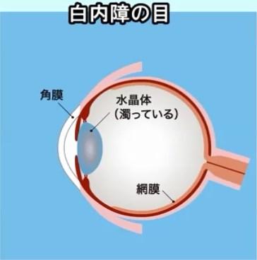白内障の目